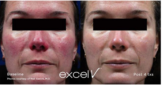 Dr Yekaterina Kleydman Rosacea Treatment Kleydman Dermatology