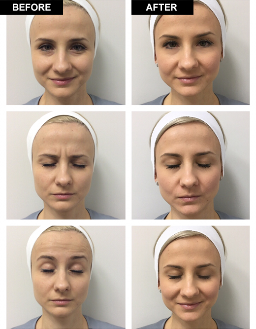 Dr  Yekaterina Kleydman - Botox – Kleydman Dermatology