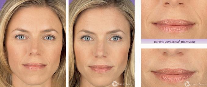 Dr  Yekaterina Kleydman Juvederm Ultra XC – Kleydman Dermatology